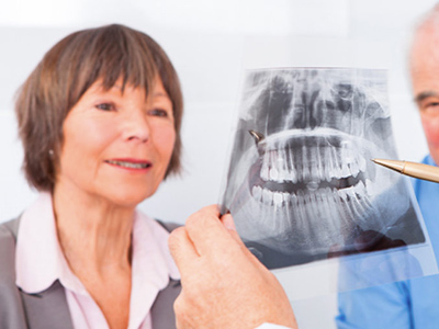 Implante Dental Osteoporosis