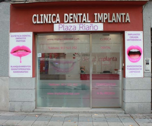dental implanta 91 752 32 52