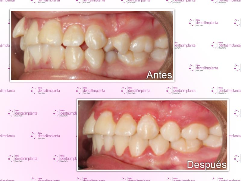 implanta dental